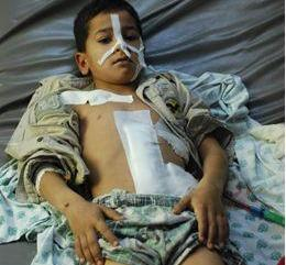 This boy is six years old; while he was playing, shrapnel entered his back and exited his front.Photo: Mohammed Ali/ Oxfa